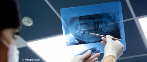 tandarts, filipijnen, kosten, prijs, vinden